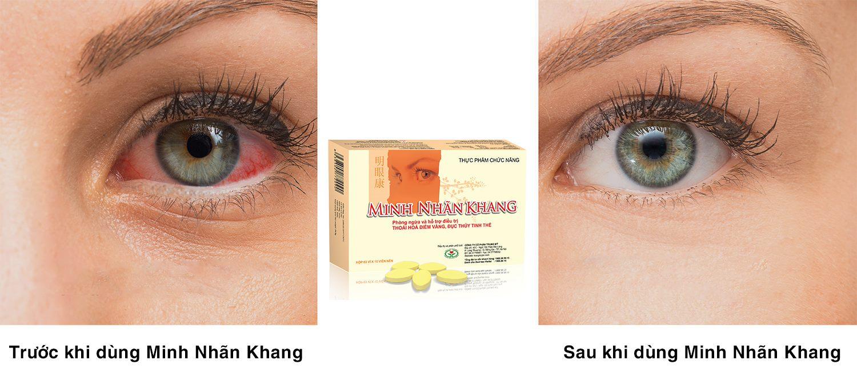 Khô mắt có nên uống Minh Nhãn Khang không? Đáp án là có